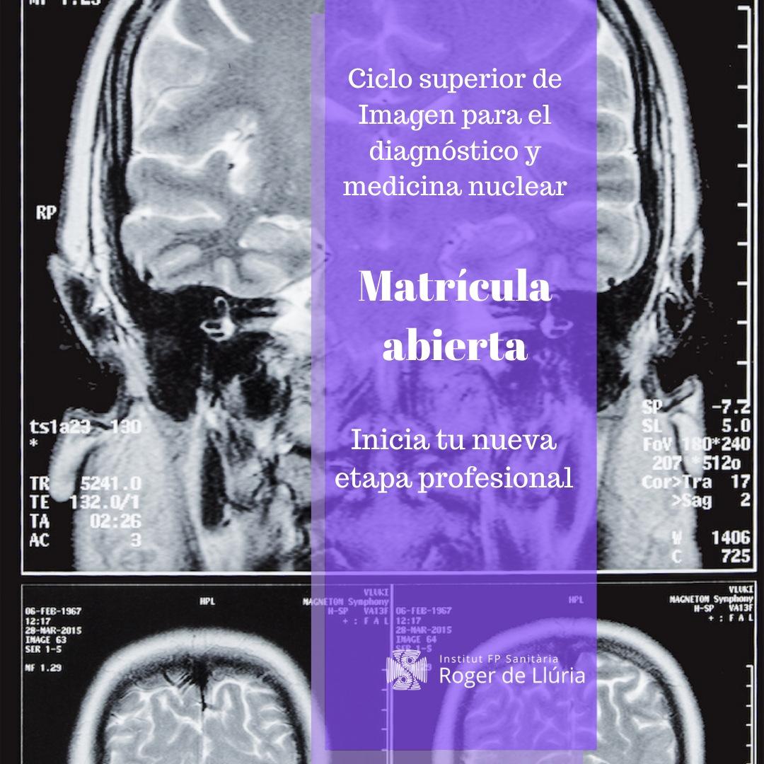 Grado superior en Imagen para el diagnóstico y medicina nuclear